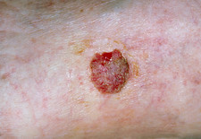 Squamous cell cancer of skin on leg