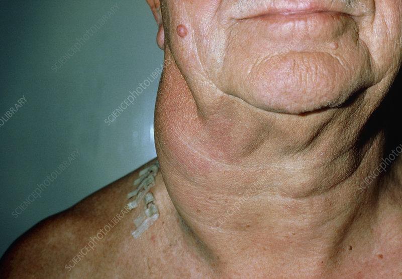 Non-Hodgkin's lymphoma: neck lymphadenopathy