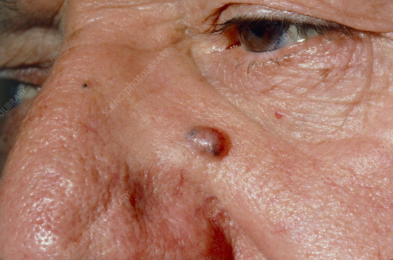 Basal cell cancer beneath elderly man's eye