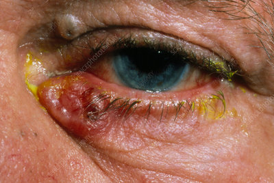 Basal cell carcinoma of lower eyelid
