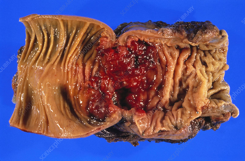 Cross-section of large intestine showing cancer