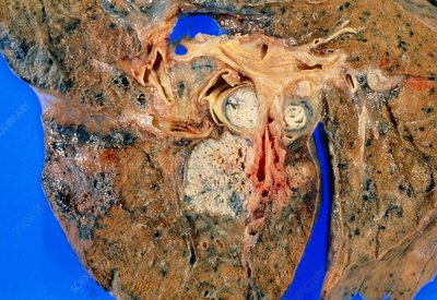 Sectioned lung affected by squamous cell carcinoma