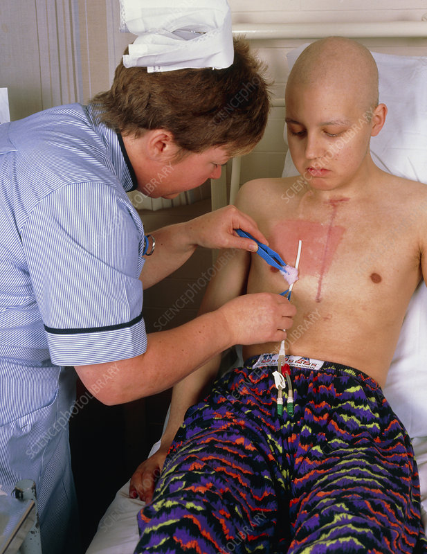 Disinfecting chest catheter in male cancer patient