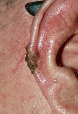 Basal cell carcinoma on skin of ear