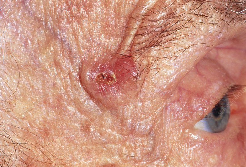 Basal cell carcinoma on temple of elderly woman
