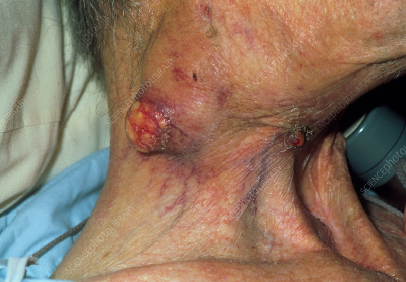 Lymph node tumour on neck of larynx-cancer patient