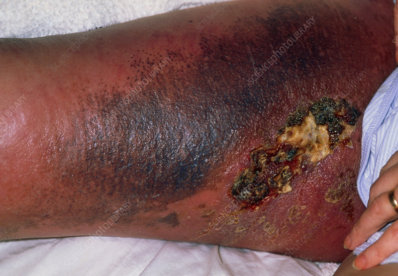 Ulcer on the leg of a woman with a groin lymphoma
