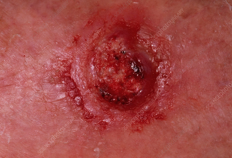 Squamous cell carcinoma on woman's leg