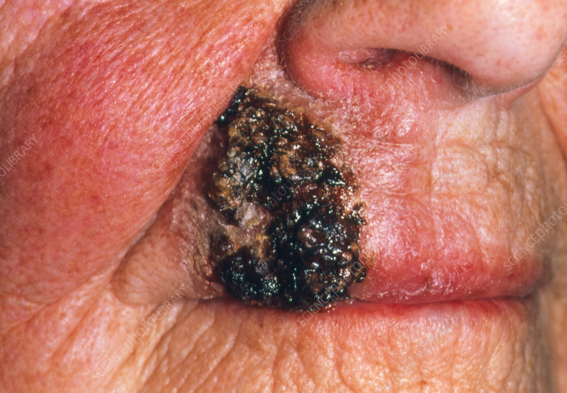 Squamous cell carcinoma on lip after radiotherapy