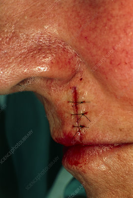Sutured cut after excision of basal cell carcinoma