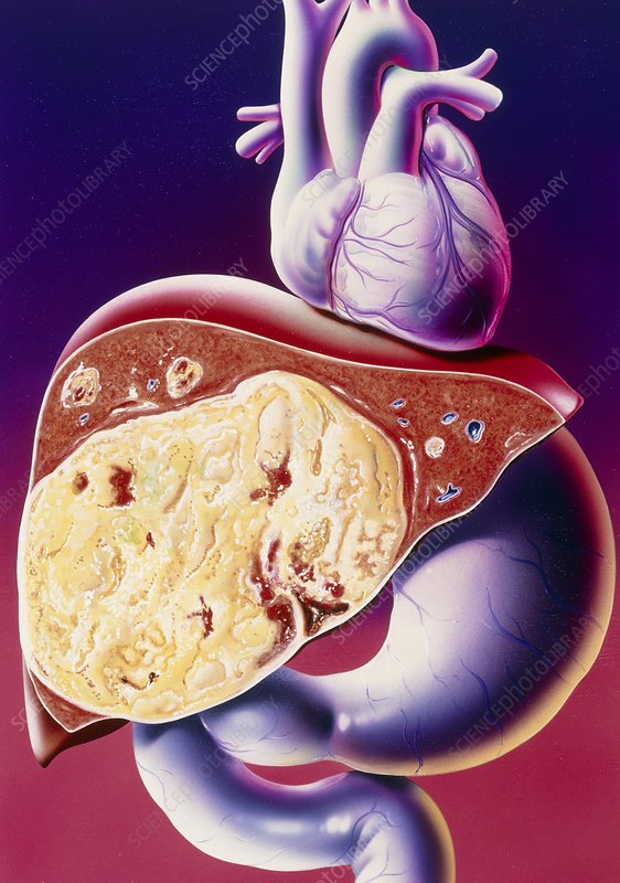 Illustration of carcinoma of the liver