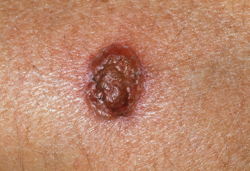Basal cell carcinoma one week after cryosurgery
