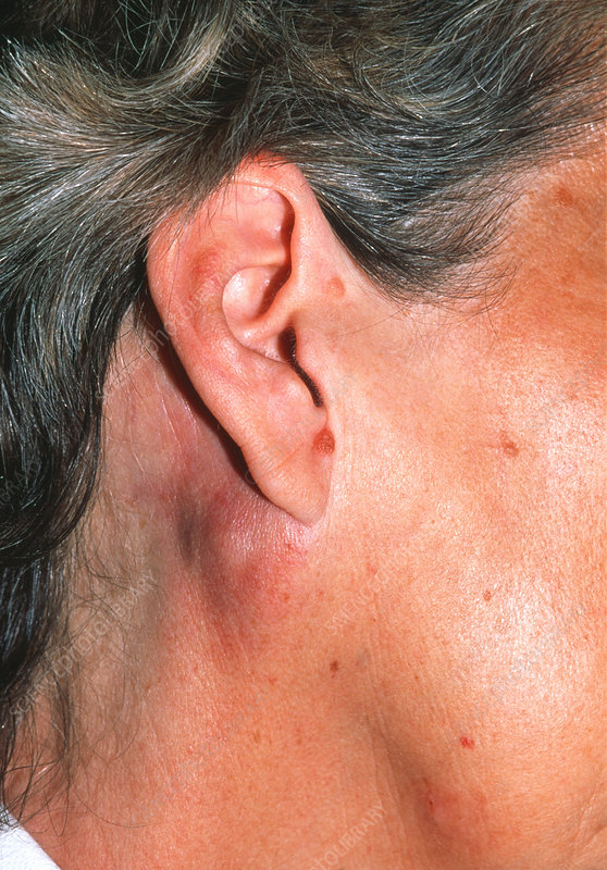 Swollen Lymph Nodes Behind Ear