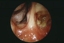 Sinus cancer after treatment