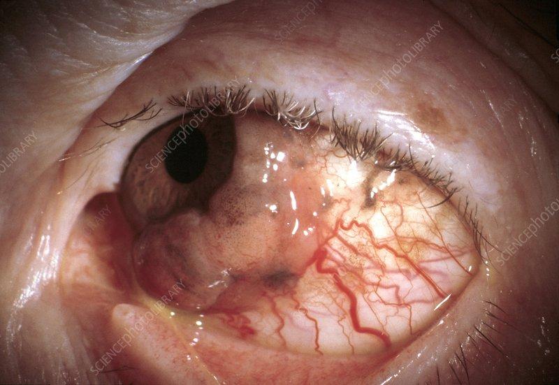 eye cancer - stock image m131  0401
