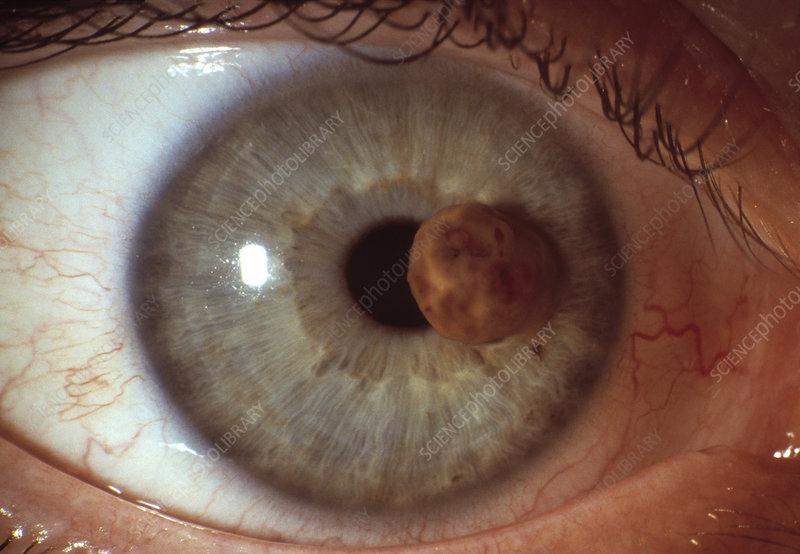 Augenkrebs Is Back