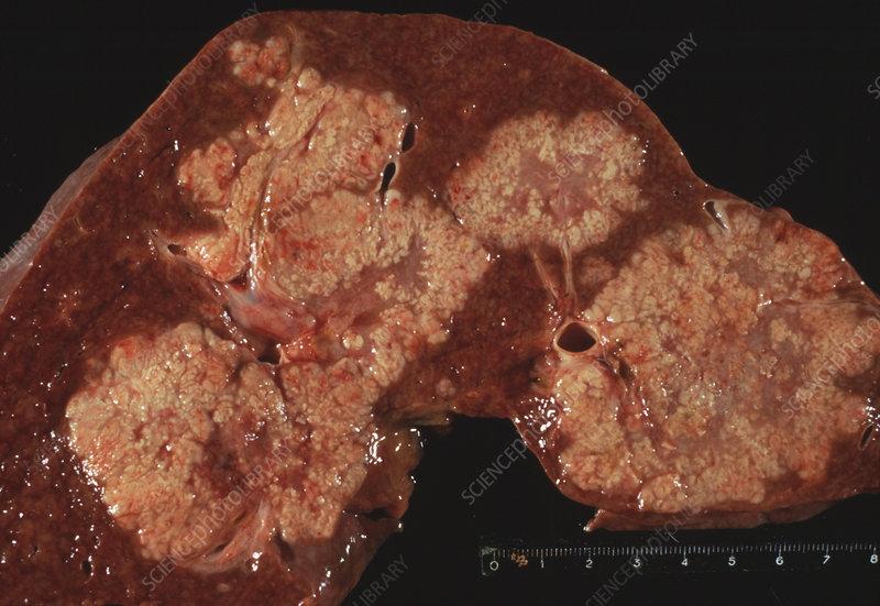 gallstones removal risks