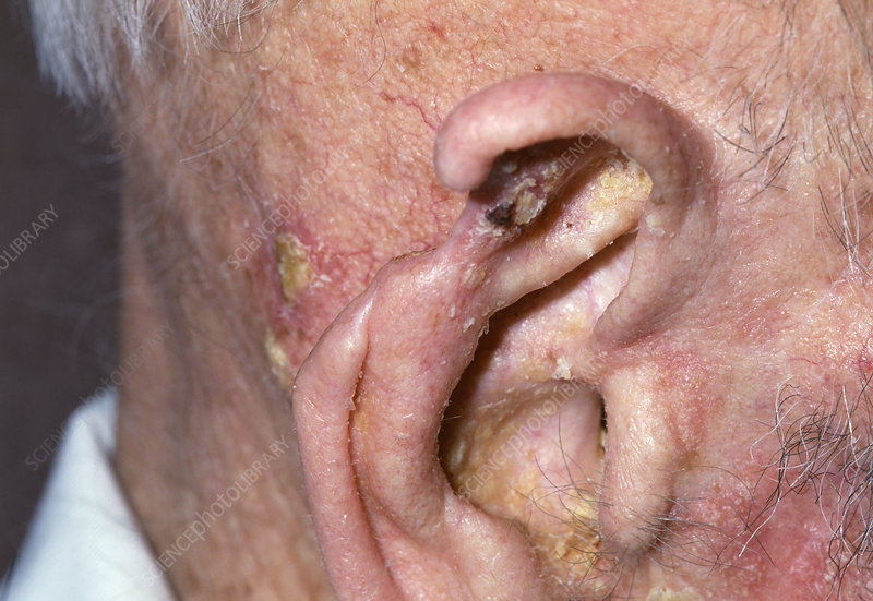 Ear after cancer treatment
