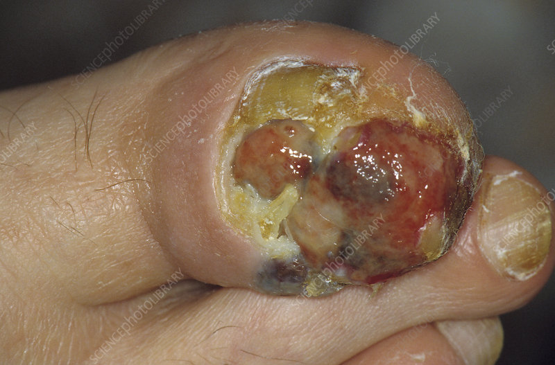 Skin cancer under a toe