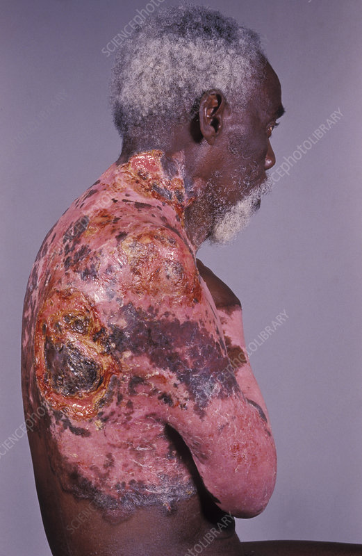 Infected skin cancer