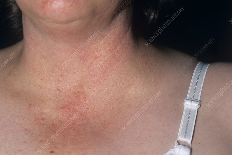 Swollen lymph node - Stock Image M131/0633 - Science Photo Library