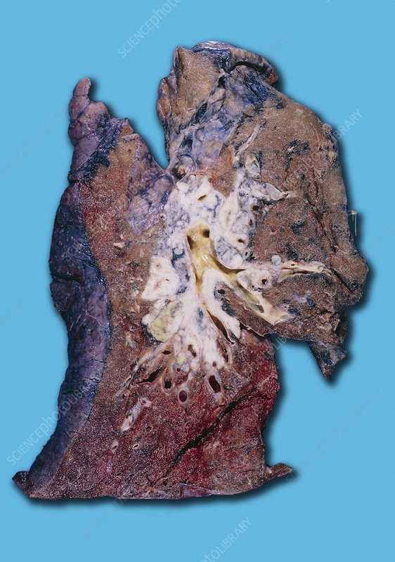 Squamous cell carcinoma lung cancer