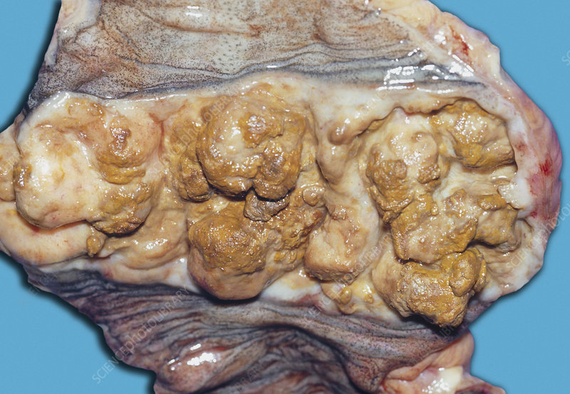 Cancer of the small intestine