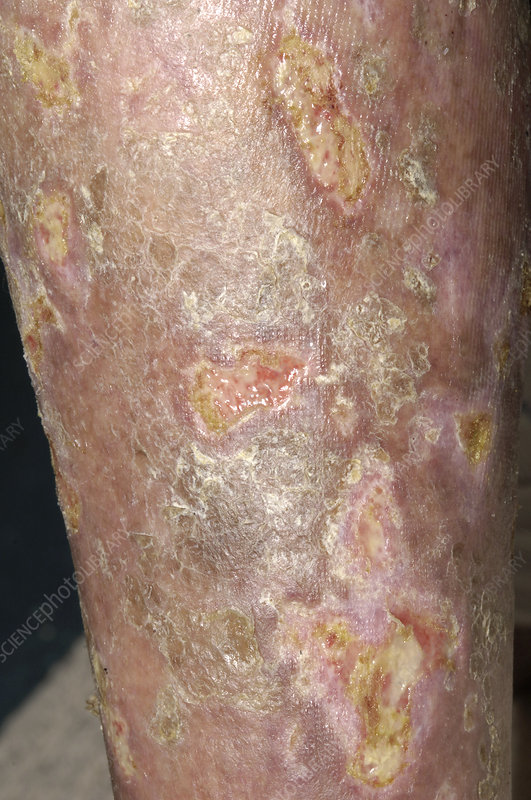 Mycosis fungoides ulcers