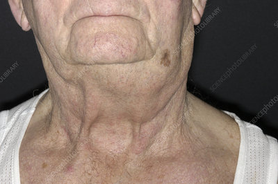 Swollen lymph node due to cancer