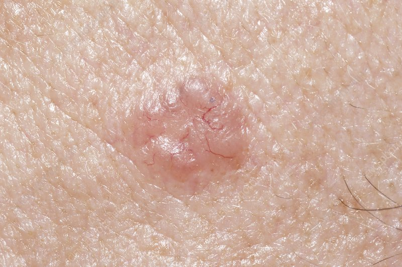 Skin cancer, basal cell carcinoma