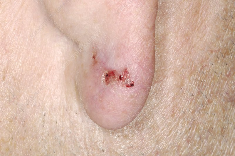 Skin cancer on ear, basal cell carcinoma