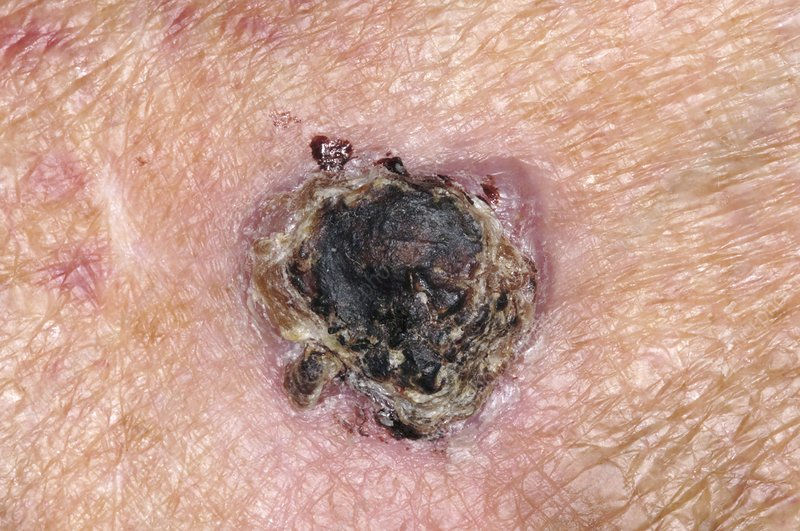 Skin cancer, squamous cell carcinoma