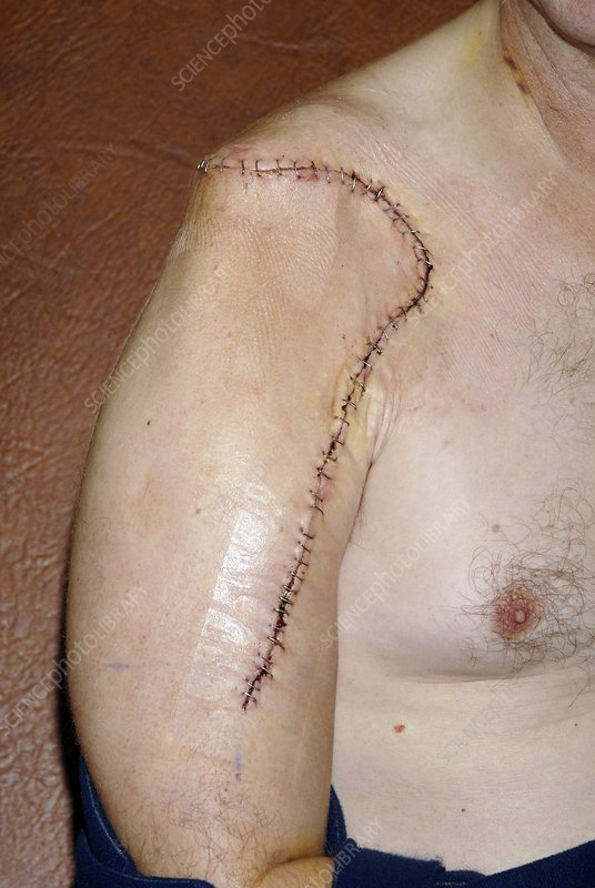 Bone cancer surgery scar
