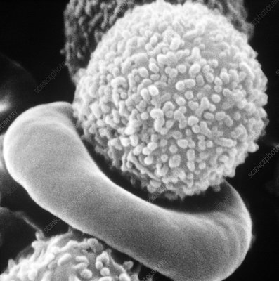 SEM of white blood cell from patient