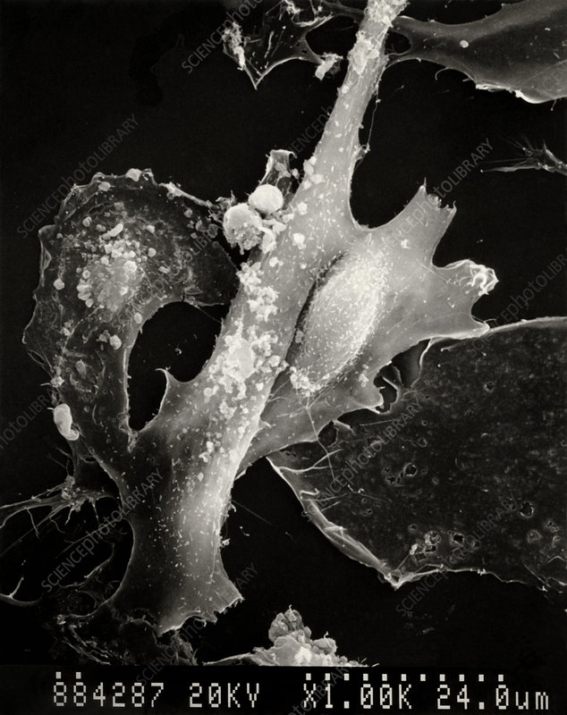 Cancer cells in Hodgkin's disease
