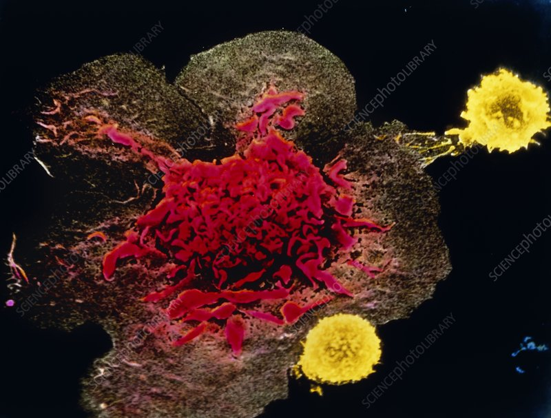 LAK cell engaging a cancer cell