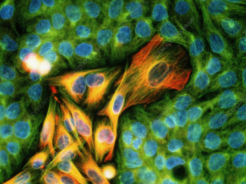 Immunofluorescent LM of melanoma cancer cells