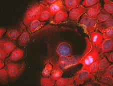 Immunofluorescent LM of squamous carcinoma cells