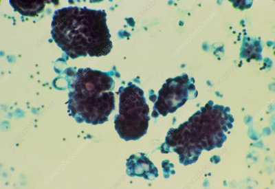 LM of cancerous glandular cells in ascitic fluid