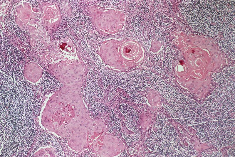 LM of secondary lymph node cancer (carcinoma)