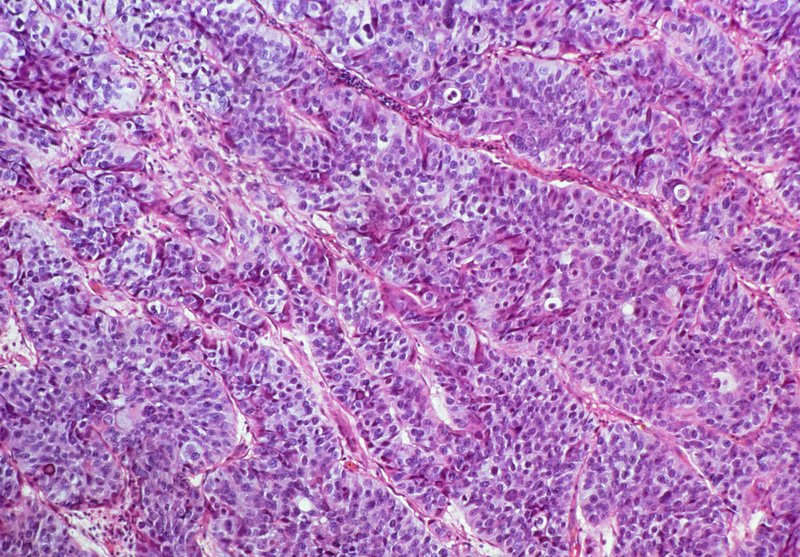 LM of transitional cell carcinoma of bladder