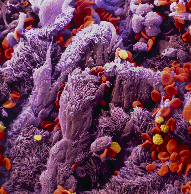 Colour SEM of lung bronchus epithelium with cancer