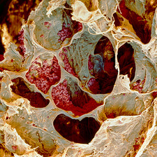 Coloured SEM of smoker's lung with cancer