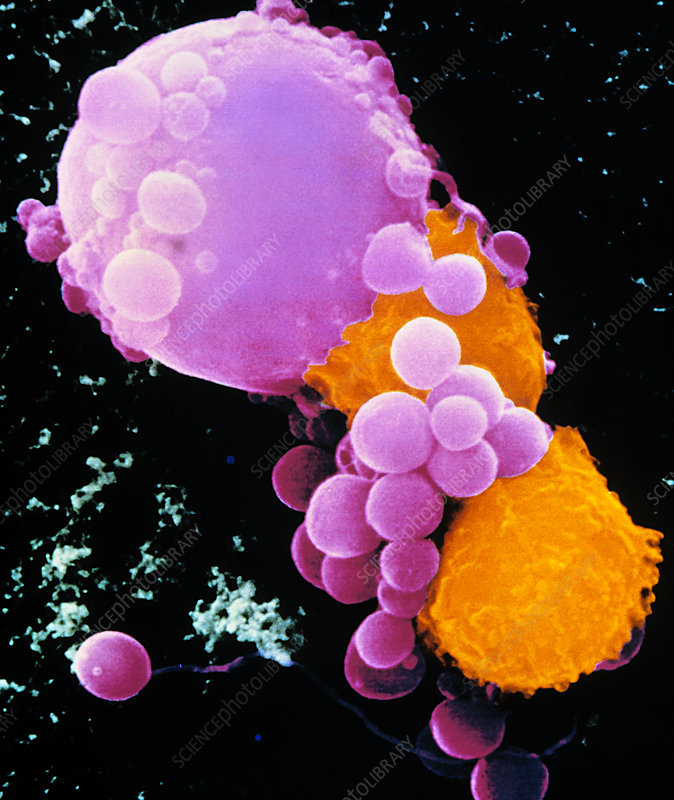 Coloured SEM of lymphocytes attacking cancer cell