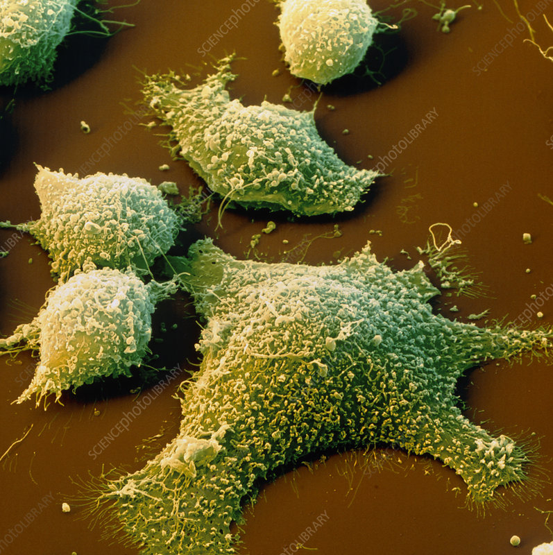 Coloured SEM of cancer cells from the colon