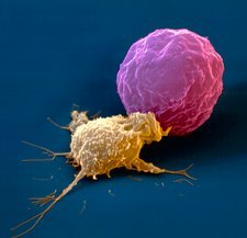 SEM of killer cell attacking cancer cell