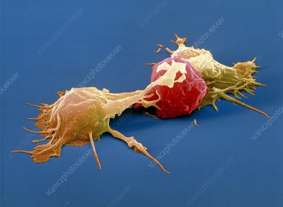 Colour SEM of killer cells attacking cancer cell