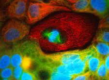 Immunofluorecent LM of human colon cancer cells