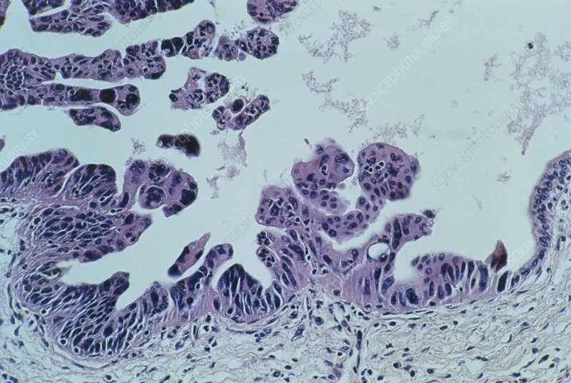 LM showing ductal adenocarcinoma of human pancreas