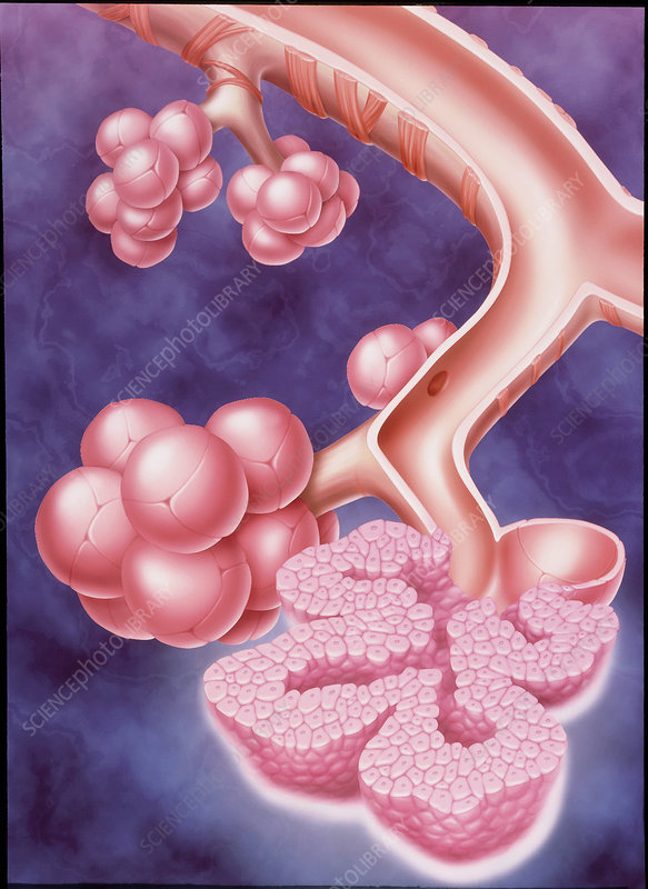Artwork showing lung cancer amongst alveoli